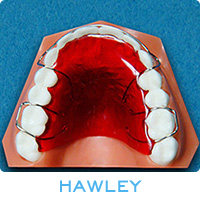 Types of Retainers | Dr  Alex Cranford Newnan